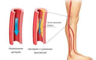 Дуплексное сканирование сосудов: всё о методике диагностики