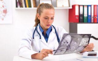 Опухоли мозжечка: злокачественные и доброкачественные