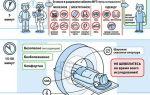 Инсульт: симптомы острого нарушения мозгового кровообращения