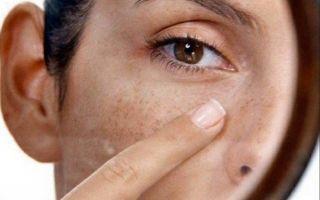 Пятно в глазу: причины появления, симптомы, терапия