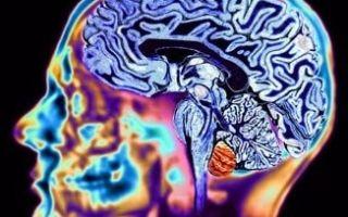 Болезнь генгтингтона: наследственная патология головного мозга