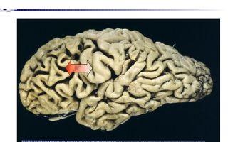 Болезнь ниманна-пика: передаётся ли по наследству заболевание