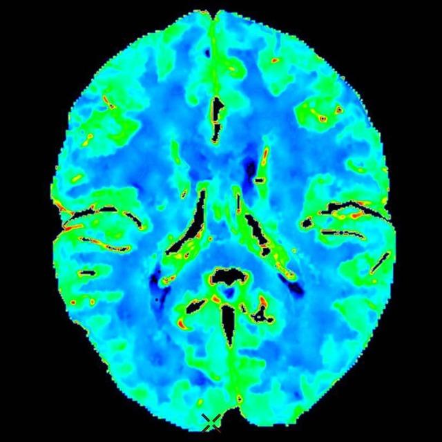 Ангиография сосудов головного мозга: как проводится обследование