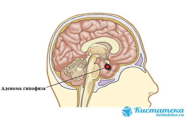 Удаление аденомы гипофиза хирургическим методом и без операции