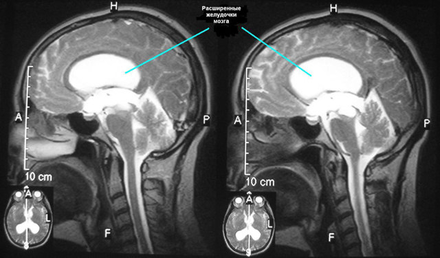 Желудочки головного мозга: заполненные ликвором полости