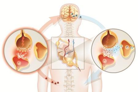 Боли в сердце или невралгия: по каким симптомам отличить