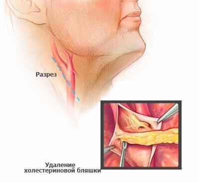 Церебральный атеросклероз:заболевание сосудов головного мозга