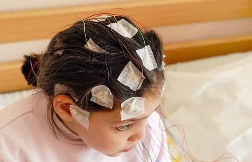Виды эпилепсии и характеристика заболевания