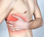 Межреберная невралгия: причины, симптомы, диагностика, лечение