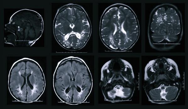 Вредно ли МРТ для здоровья взлослого и ребёнка