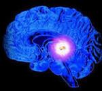 Ликворная киста головного мозга: признаки, симптомы, лечение