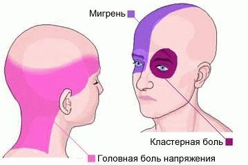 Сильно болит голова: что делать, если терпеть невозможно