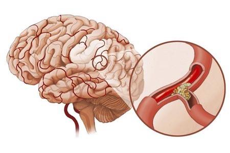 Атеросклероз сосудов головного мозга: лечение заболевания