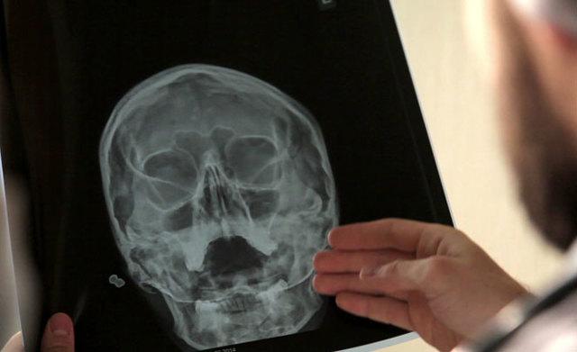 Рентген головы: особенности исследования, противопоказания