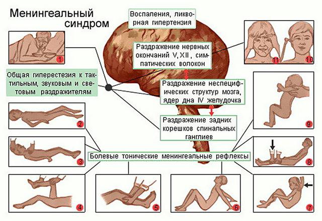 Менингит: последствия заболевания у детей, симптом и его лечение