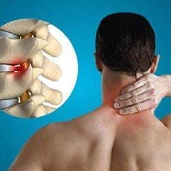 Головные боли при остеохондрозе: причины и способы избавиться