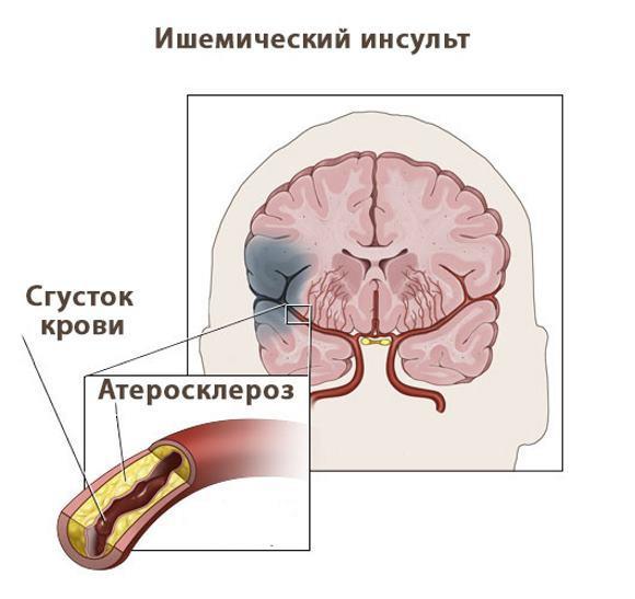 ОНМК по ишемическому типу: диагностика, лечение, особенности