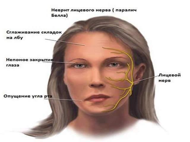 Немеет левая сторона тела: распространённые причины