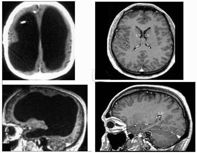 Сколько живет мозг человека после смарти: только факты
