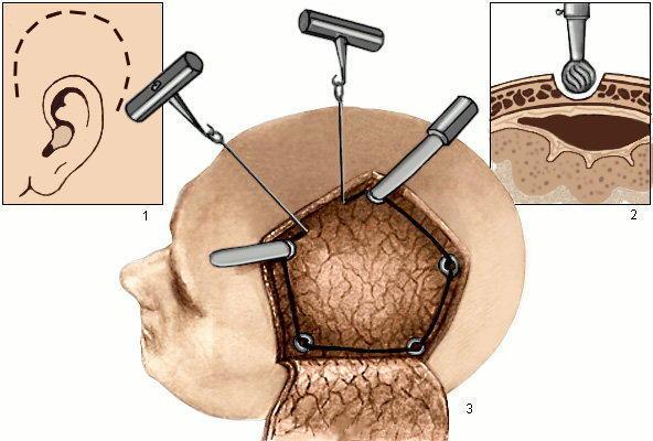 После удаления опухоли головного мозга: последствия операции