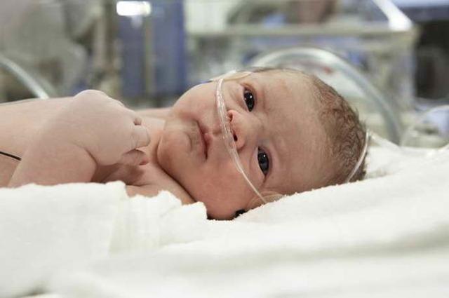 Гипоксия у новорожденных: причины и последствия патологии