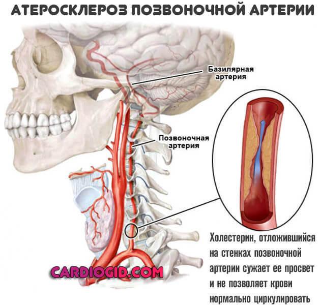 Атеросклероз сосудов головного мозга: причины, симптомы, лечение