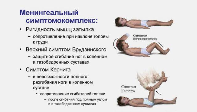 Серозный менингит - воспалительное заболевание головного мозга