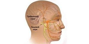 Лечение тройничного нерва в домашних условиях при его воспалении