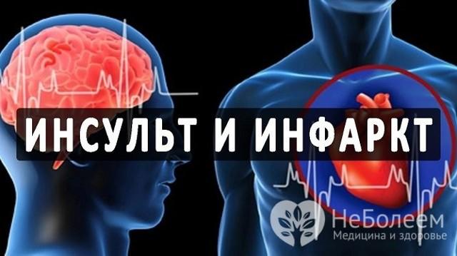 Инфаркт и инсульт: чем отличаются эти заболевания