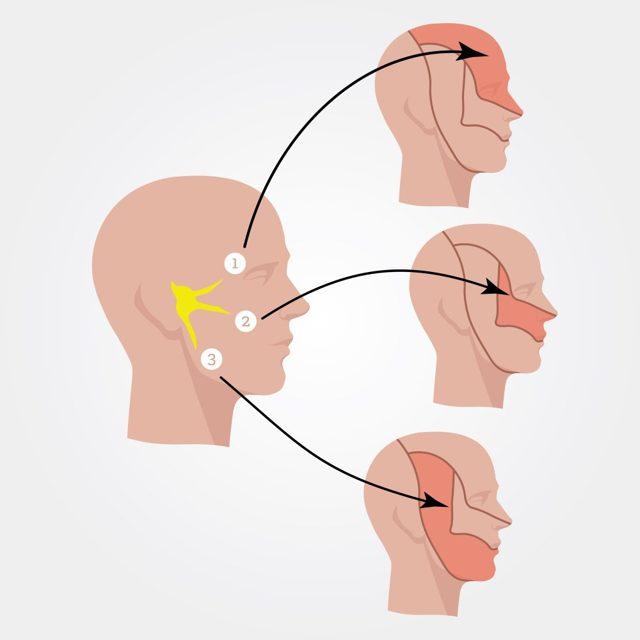 Невралгия тройничного нерва: причины и лечение заболевания