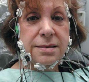 Парез лицевого нерва: заболевание мимических мышц