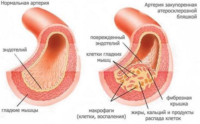 Тромбоз головы: причины и симптомы проблем с сосудами мозга