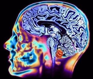 Болезнь Гентингтона - что это за болезнь? Симптомы и лечение болезни Гентингтона