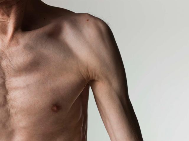 Заболевания нервной системы: причины, симптомы, классификация