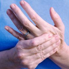 Волчанка заразна: передаётся ли заболевание от человека к человеку