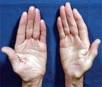 Болезнь Шарко-Мари-Тута: наследственное заболевание