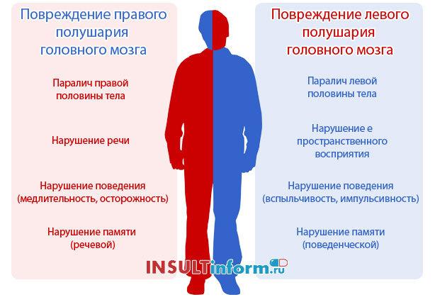 Инсульт: правая сторона, причины, признаки, первая помощь