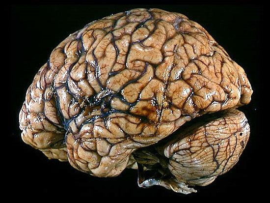 Сколько извилин у человека может быть в головном мозгу