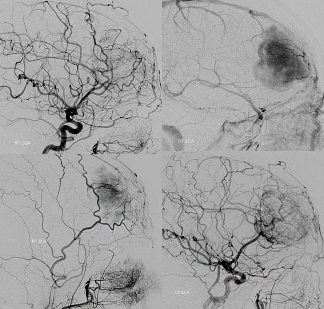 Ангиография сосудов: как проводится исследование кровотока