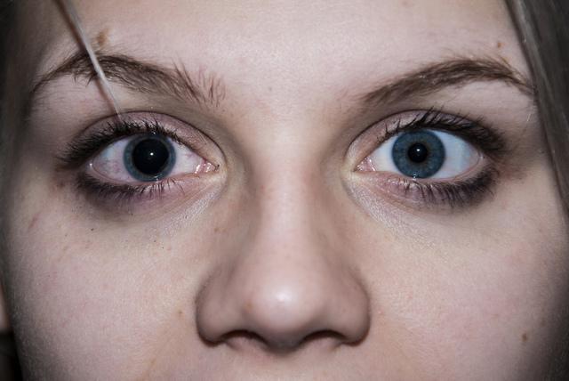 Субдуральная гематома: острое кровоизлияние в головной мозг