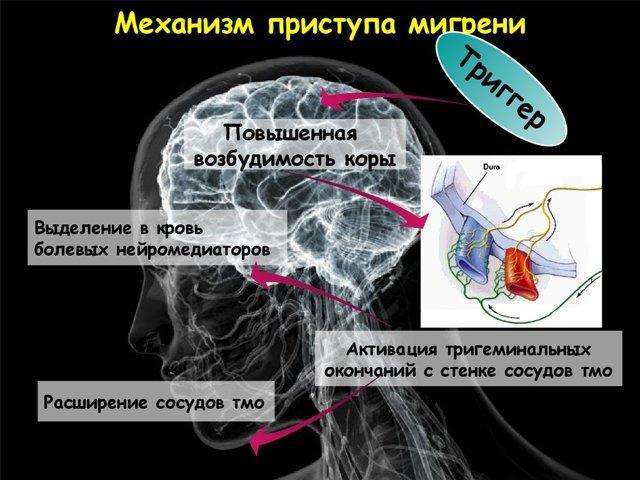 Приступ мигрени: симптомы и способы избавиться от недомогания