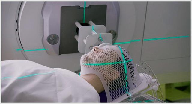 Лечение опухоли головного мозга: методы удалить новообразование
