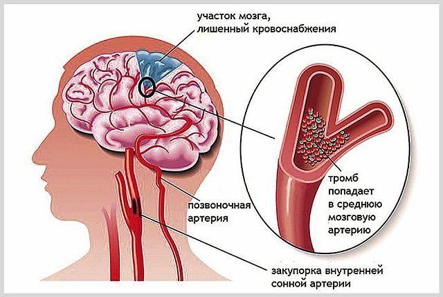 Виды инсульта головного мозга: ишемический, геморрагический