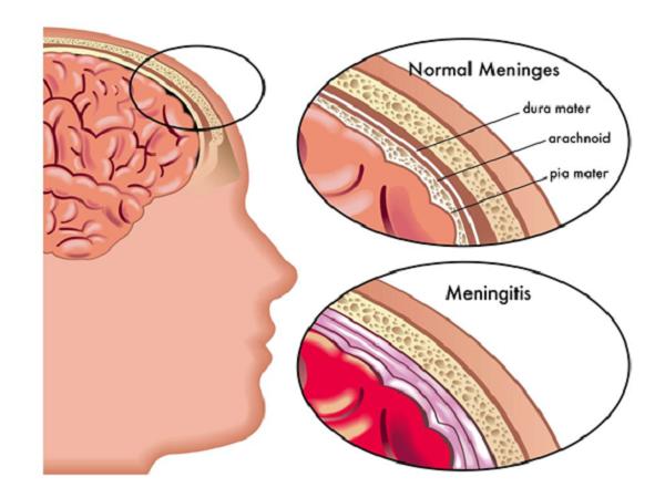 Менингитовая инфекция у детей: симптомы, лечение, пути заражения