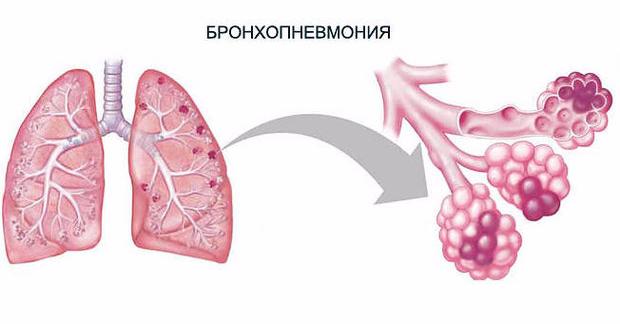Болезнь Паркинсона: продолжительность жизни больного человека
