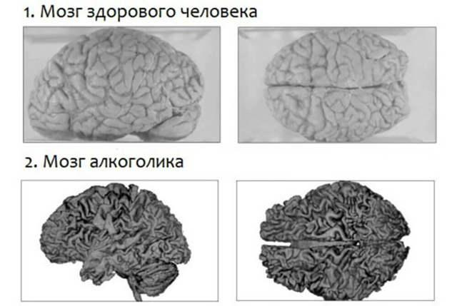 Токсическая энцефалопатия: отравление головного мозга