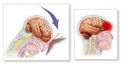 Гематома головного мозга: причины и симптомы скопления крови