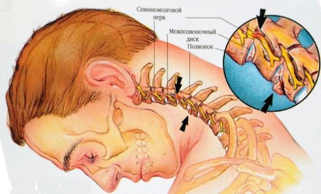 Болит голова при наклоне вниз: причины, симптомы заболеваний