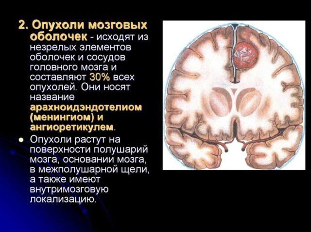Менингиома головного мозга: причины и опасность опухоли