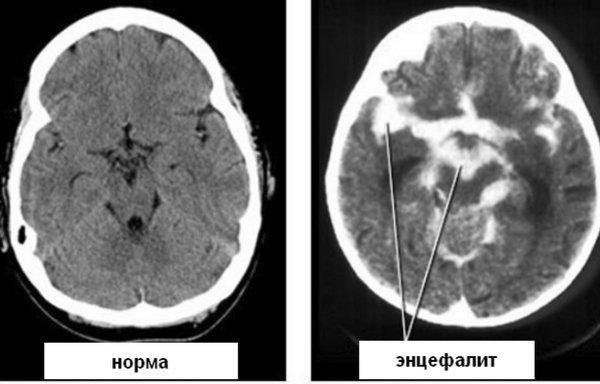 Воспаление мозга - опасное инфекционное заболевание головы